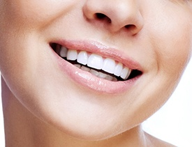 Closeup of flawless smile after direct bonding