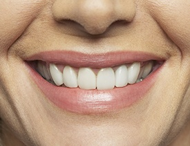 Closeup of healthy smile following scaling and root planing