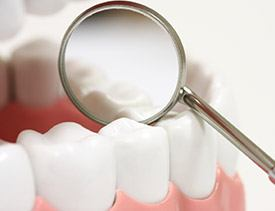 Teeth examined after dental sealants