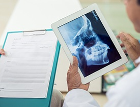 Dentist looking at dental x-rays and patient chart